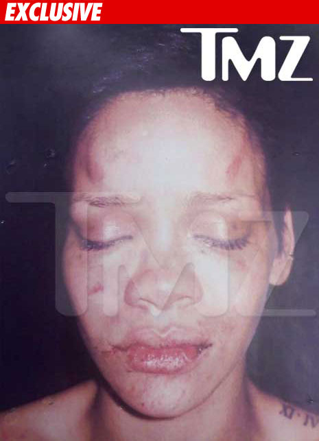 rihanna_photo_beating_ex_01